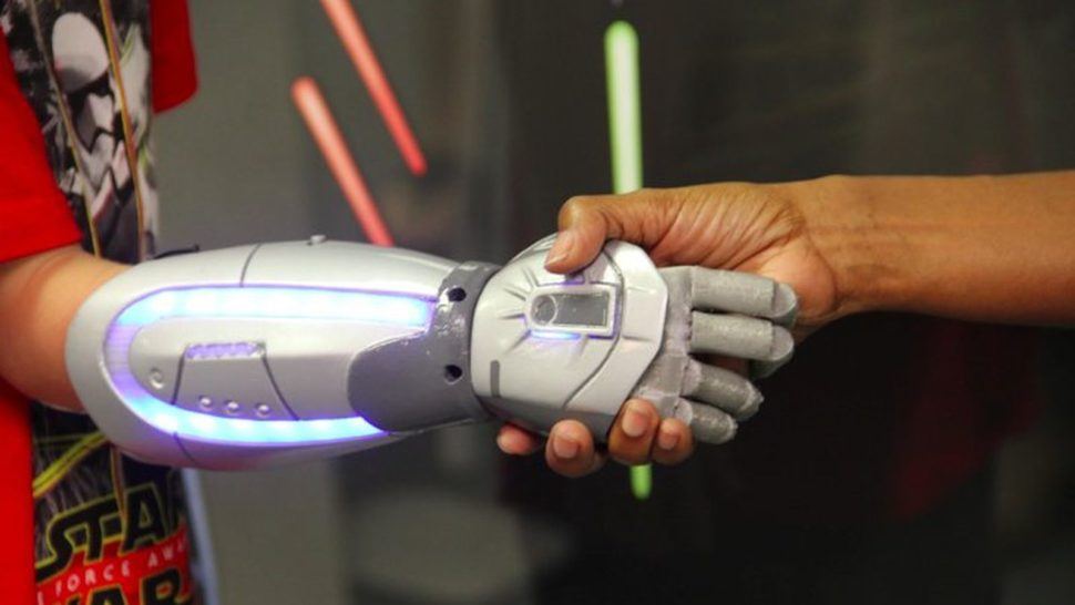 child wearning star wars prosthetic hand